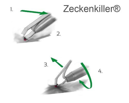 Profi Zeckenzange Aluminium
